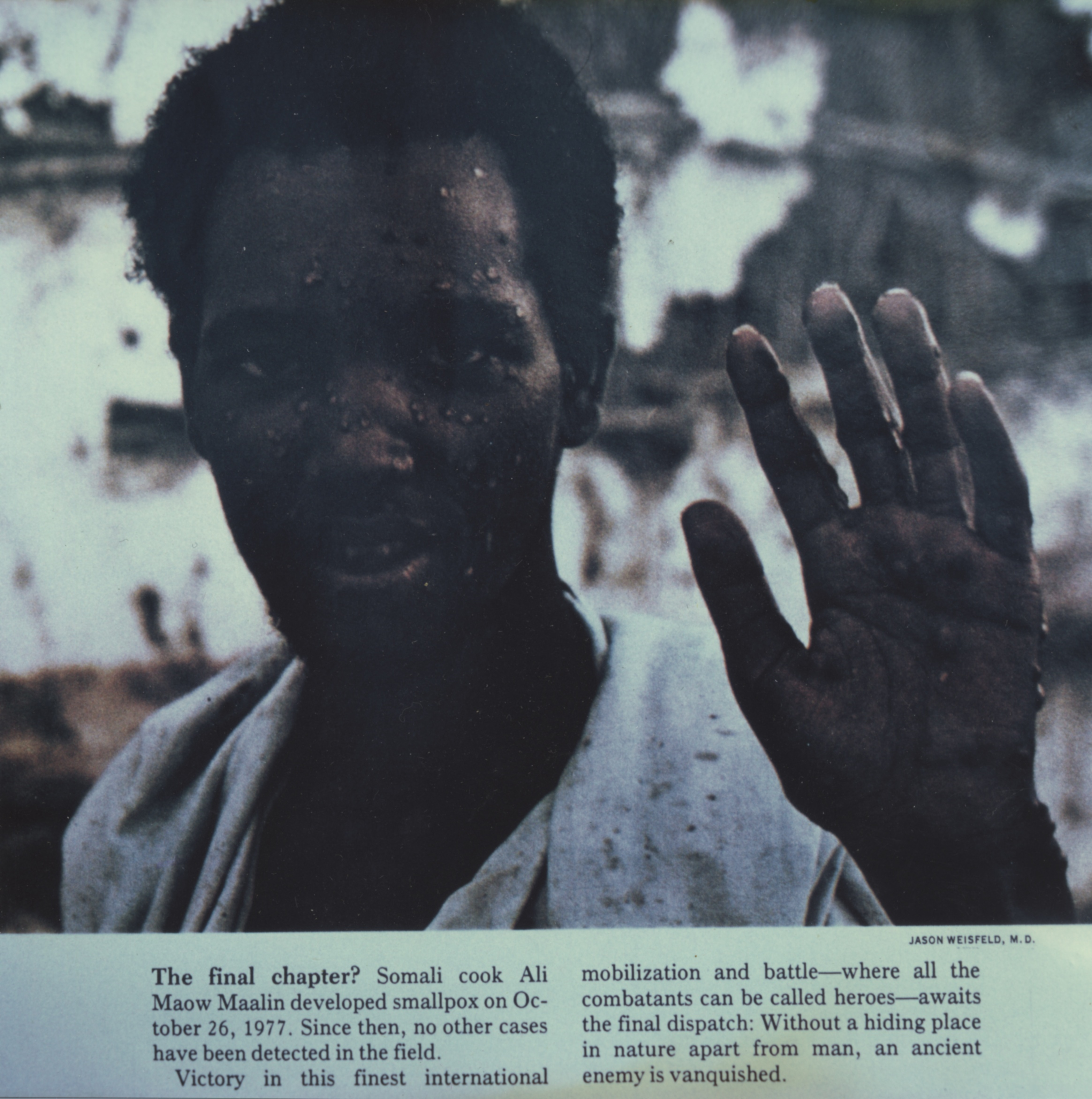 Photo of Ali Maow Mallin, who in October 1977 was the last person on Earth to be naturally infected with smallpox. There were a few unnaturally occurring smallpox cases in September 1978, which were the result of a laboratory accident in Birmingham, England, that led to one death and a limited outbreak.