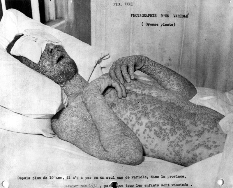 Photo of a man suffering from a severe case of smallpox, the caption noting that Quebec's last smallpox case had been in 1932, the same year that Vancouver was stricken with an especially virulent epidemic with 17 deaths out of a total of 56 cases.
